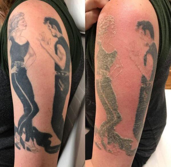 removal tattoo foto 1